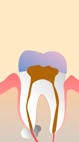 endodoncia gava